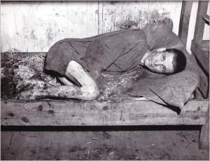 Mauthausen: ετοιμοθάνατος κρατούμενος αμέσως μετά την απελευθέρωση.
